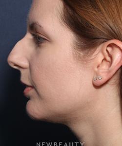 ljcsc-dr-wheeler-rhinoplasty-b