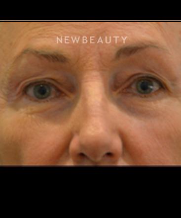 dr-b-aviva-preminger-restoring-a-natural-look-b