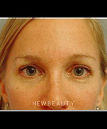 dr-kevin-tehrani-blepharoplasty-b