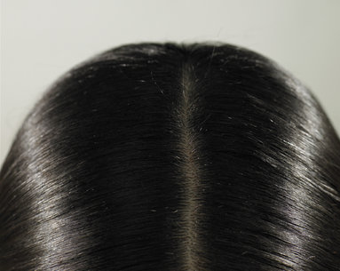 Coming Soon: A Way to Prevent Hair Loss During Chemo