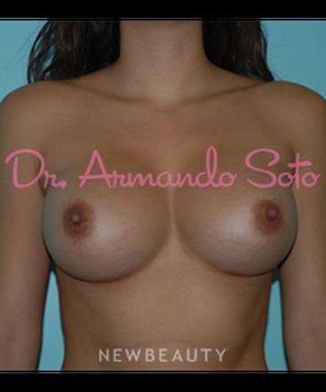 dr-armando-soto-breast-augmentation-b