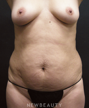 dr-elie-levine-breast-augmentation-laser-liposuction-mommy-makeover-tummy-tuck-b