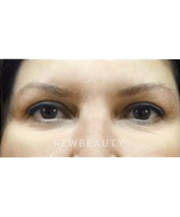 dr-jasmine-mohadjer-upper-blepharoplasty-b