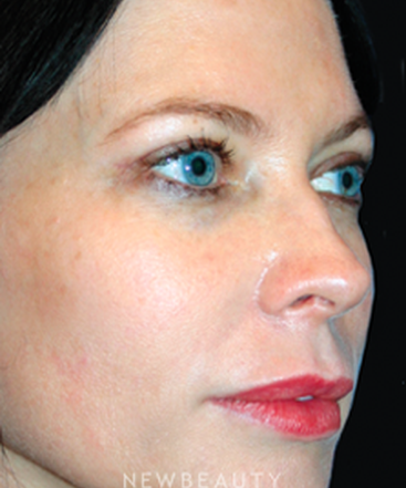 dr-kelly-bomer-blepharoplasty-b
