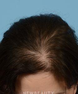 dr-jeffrey-wise-hair-loss-treatment-b