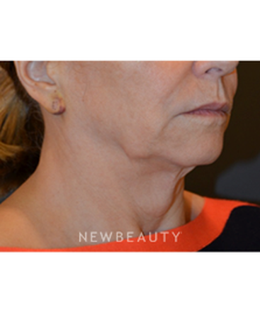 dr-b-aviva-preminger-facelift-and-necklift-b