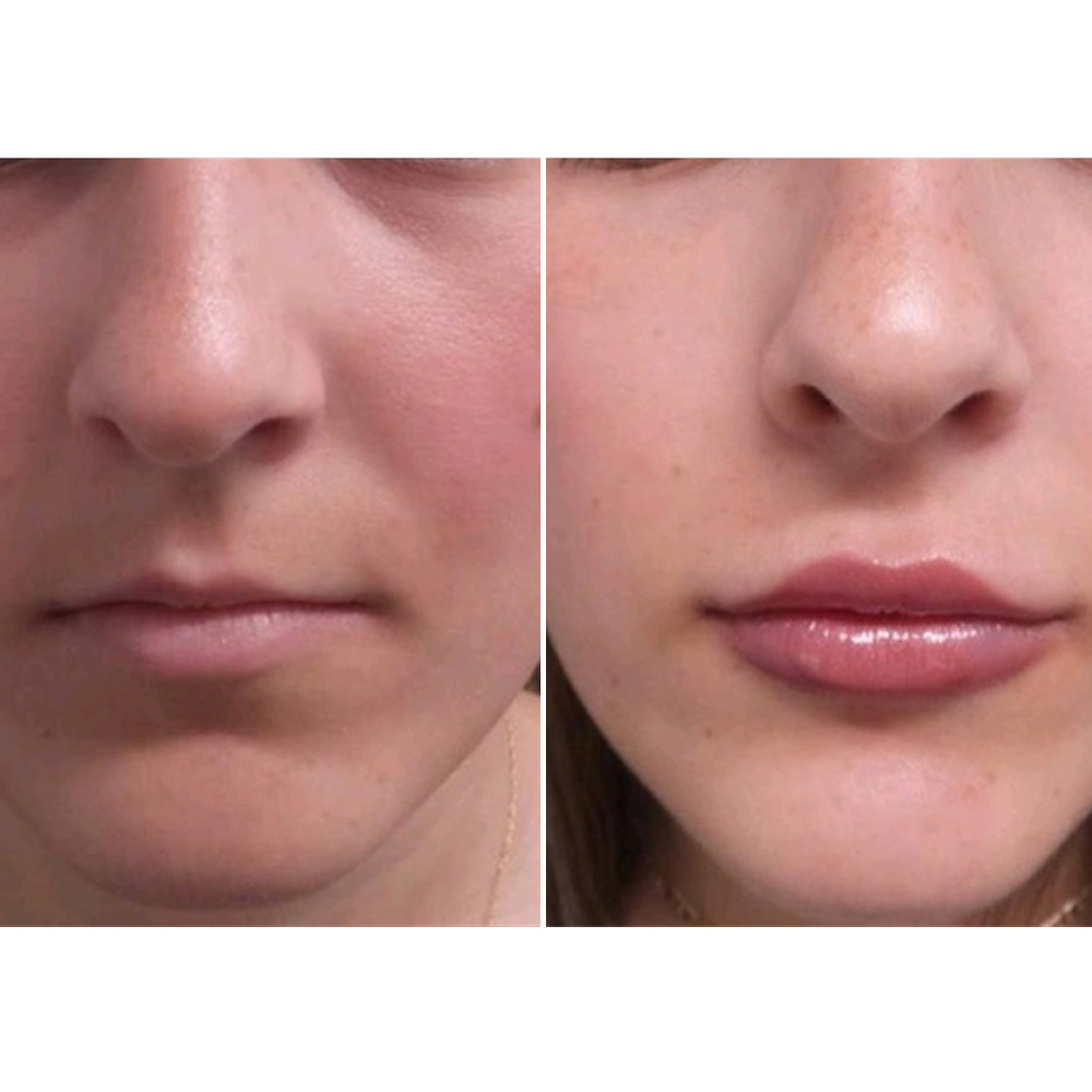 The Best Lip Enhancement Treatment for Every Age - NewBeauty
