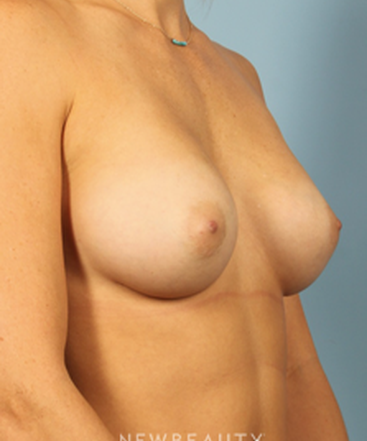 dr-karmen-cavali-breast-augmentation-b