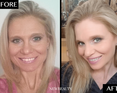 How This 47-Year-Old Woman Completely Transformed Her Smile From Home