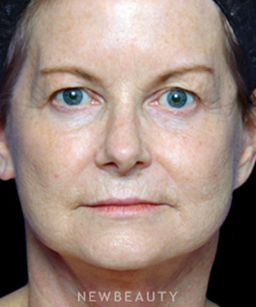 dr-alan-durkin-upper-blepharoplasty-b