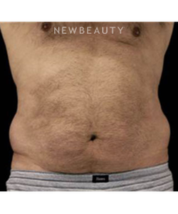 dr-stafford-broumand-liposuction-b