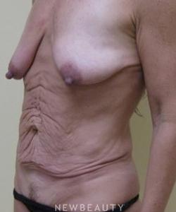 dr-beth-collins-breast-augmentation-tummy-tuck-b