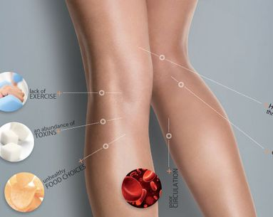 How Cellulite Forms