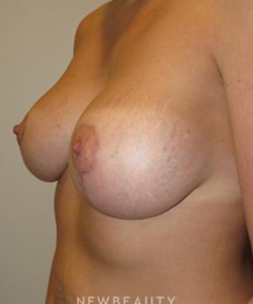dr-rolando-morales-breast-lift-b