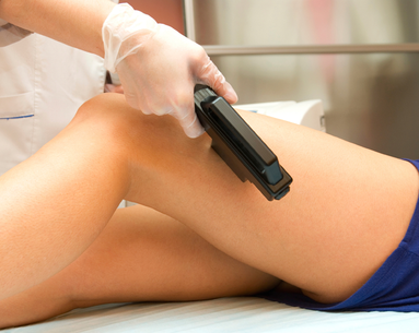 Your Complete Guide to Laser Hair Removal