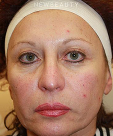 dr-irene-gladstein-botox-browlift-b