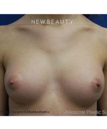 dr-kevin-tehrani-breast-augmentation-with-smooth-silicone-implants-b
