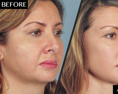 Why This Woman Got a Facelift—And Couldn't Be Happier