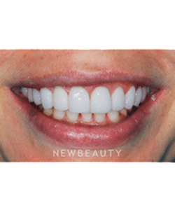dr-ronald-goldstein-smile-makeover-crowns-whitening-gum-lift-contouring-b