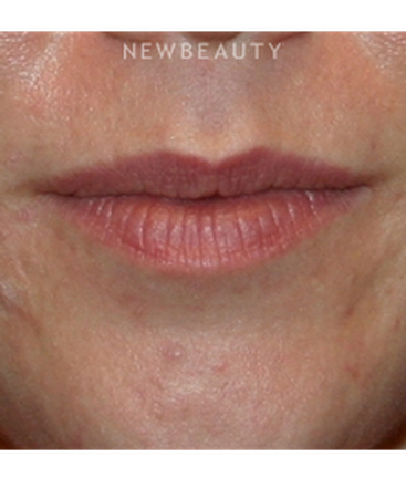 dr-kelly-bomer-lip-enhancement-b