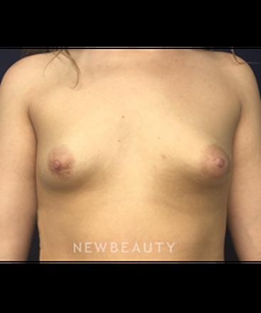 dr-kirk-churukian-breast-augmentation-b