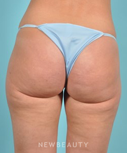 dr-brad-bengtson-cellulite-treatment-b