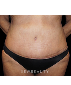 dr-niki-a-christopoulos-tummy-tuck-with-liposuction-b