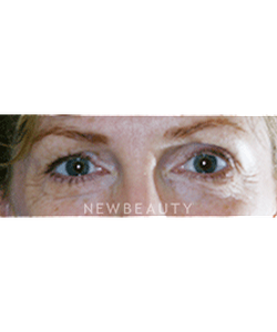 dr-lee-ann-klausner-blepharoplasty-b