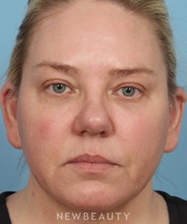dr-kathleen-behr-natural-looking-facial-rejuvenation-b