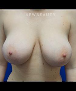 dr-niki-christopoulos-breast-lift-b