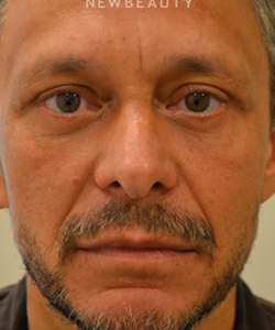 dr-bajeet-purewal-upper-and-lower-blepharoplasty-b