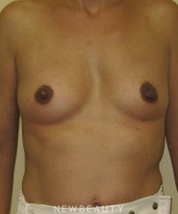 dr-beth-collins-breast-augmentation-b
