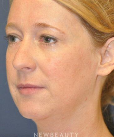 drs-lieberman-parikh-lower-blepharoplasty-b
