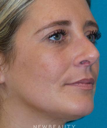 dr-adam-hamawy-rhinoplasty-b