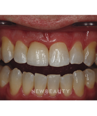 dr-neal-patel-dental-implant-b