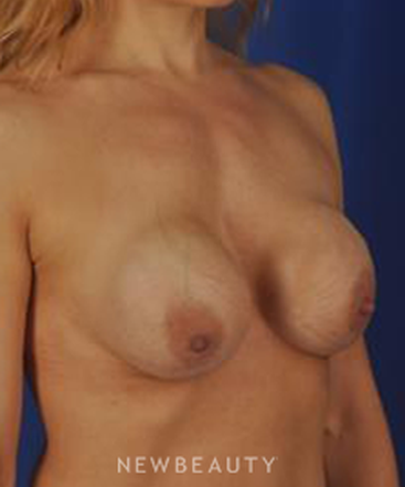 dr-peter-geldner-breast-augmentation-b