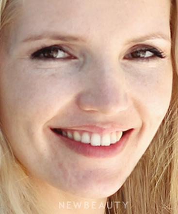 dr-katherine-ahn-smile-makeover-b