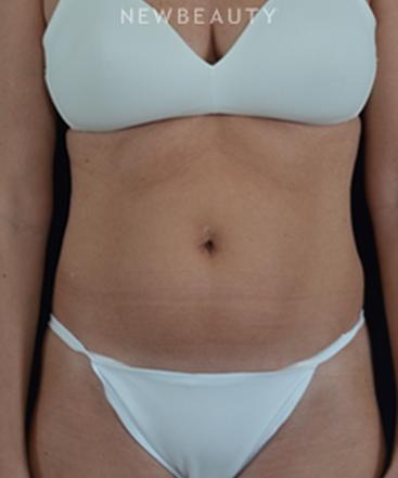 dr-cynthia-poulos-body-contouring-b
