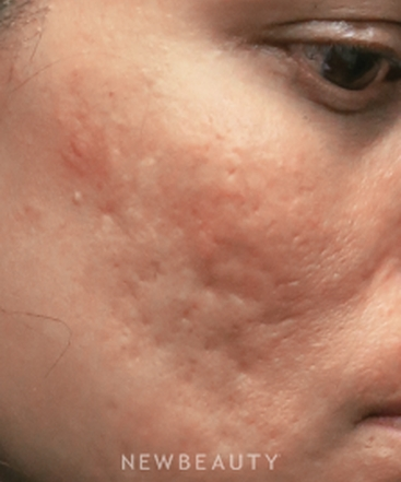 dr-jody-levine-acne-scar-treatment-b