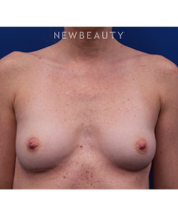dr-kevin-tehrani-beautiful-augmentation-b