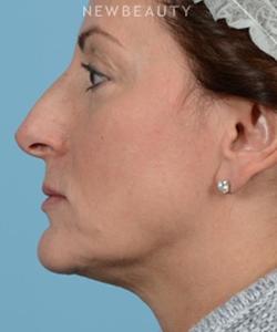 dr-jeffrey-wise-rhinoplasty-b