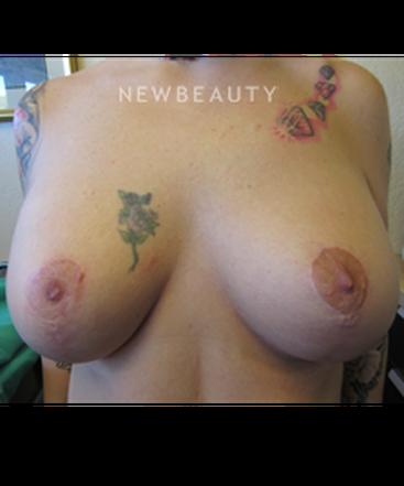 dr-jennifer-e-boll-breast-augmentation-b