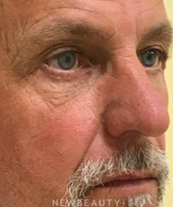 dr-beth-collins-restoring-youthful-eyes-b
