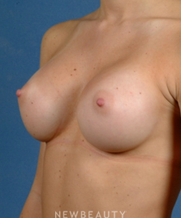 dr-bradley-calobrace-breast-augmentation-b