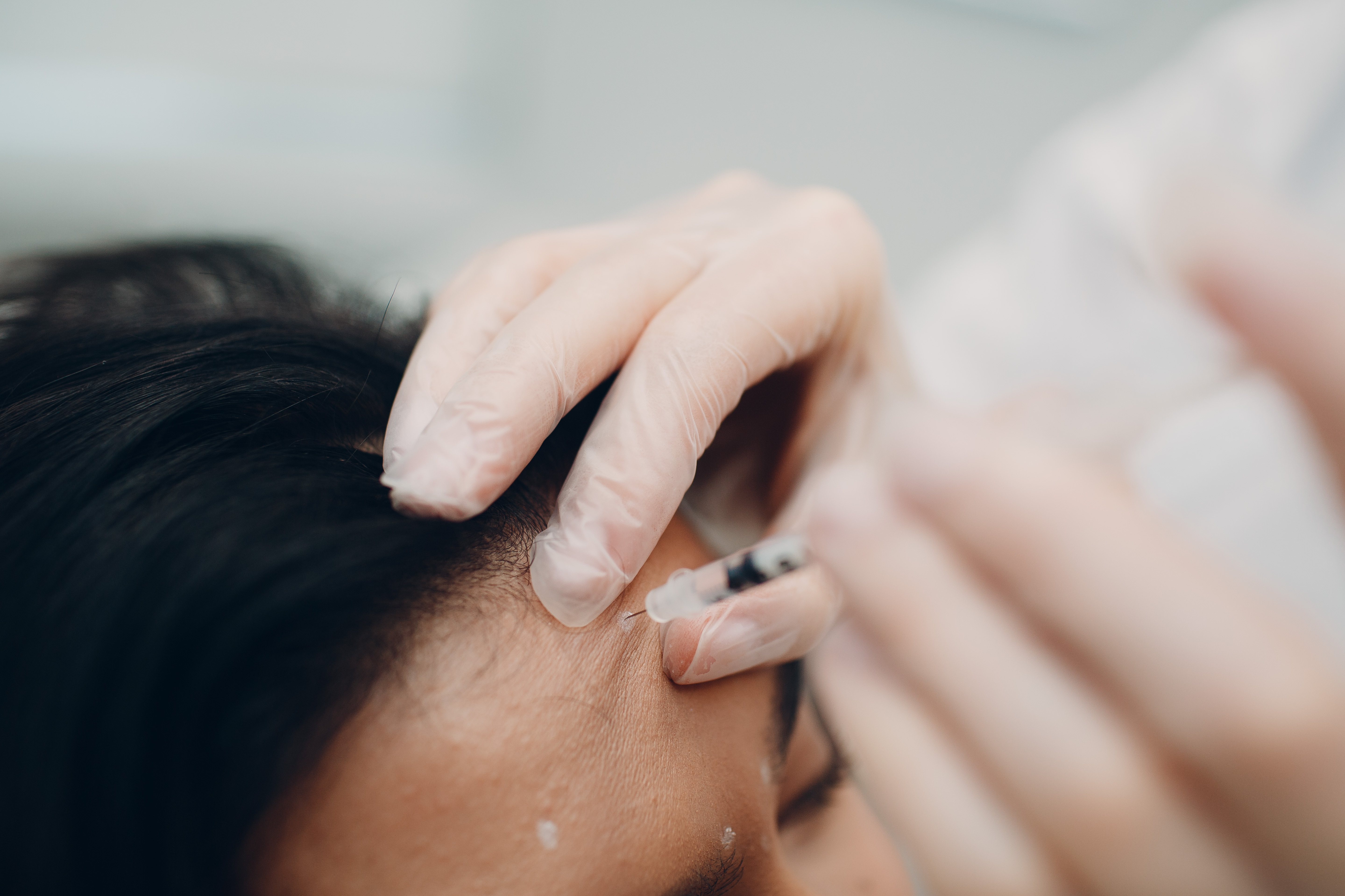 Signs of Bad Botox - Cosmetic Treatments - DailyBeauty