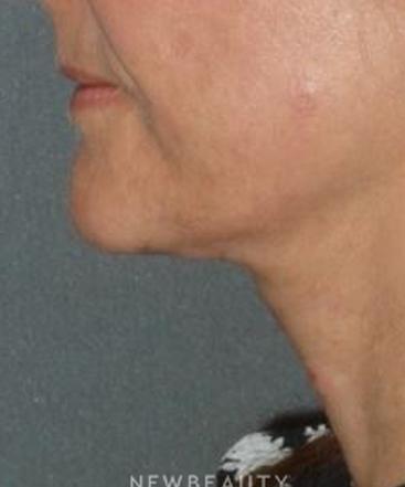 dr-min-ahn-necklift-b