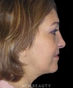 dr-elie-levine-facelift-necklift-b