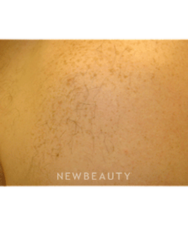 dr-tami-cassis-laser-hair-removal-b