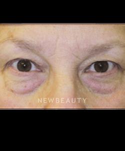 dr-stafford-r-broumand-eye-rejuvenation-b