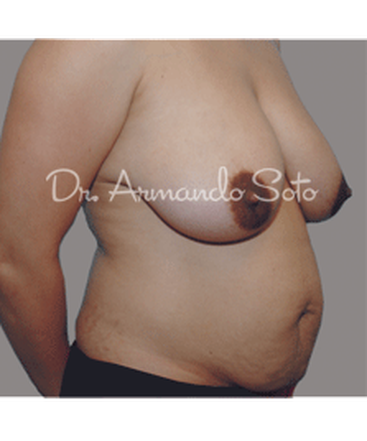 dr-armando-soto-breast-mommy-makeover-b